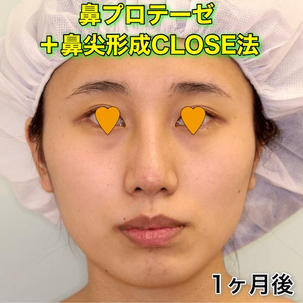 鼻プロテーゼ+鼻尖形成CLOSE法の症例写真(ビフォーアフター)