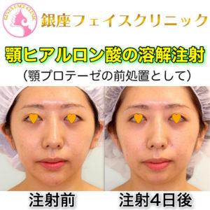 顎ヒアルロン酸の溶解注射(顎プロテーゼの前処置として)の症例写真(ビフォーアフター)