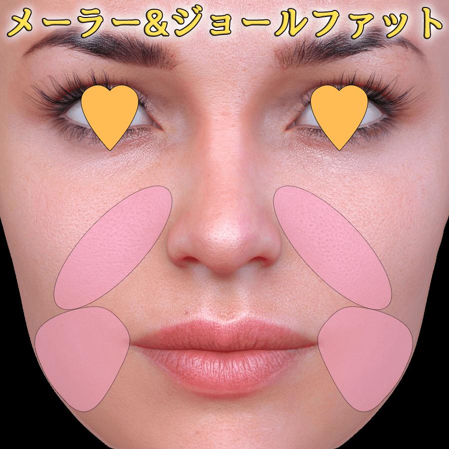 メーラー/ジョールファット