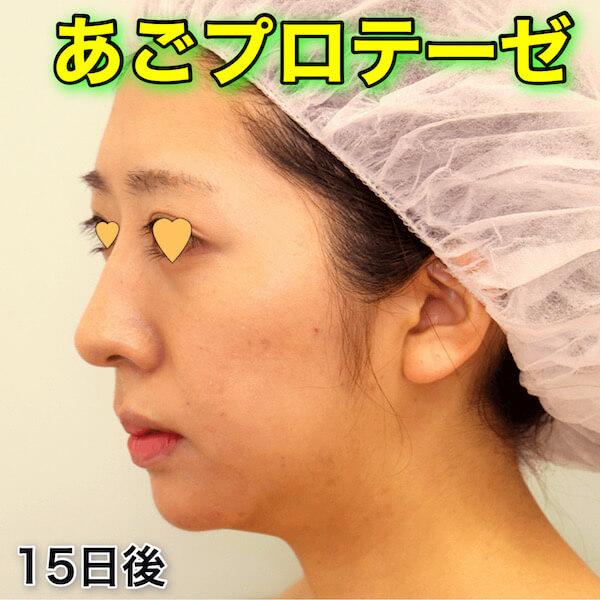 あごプロテーゼの症例写真(ビフォーアフター)
