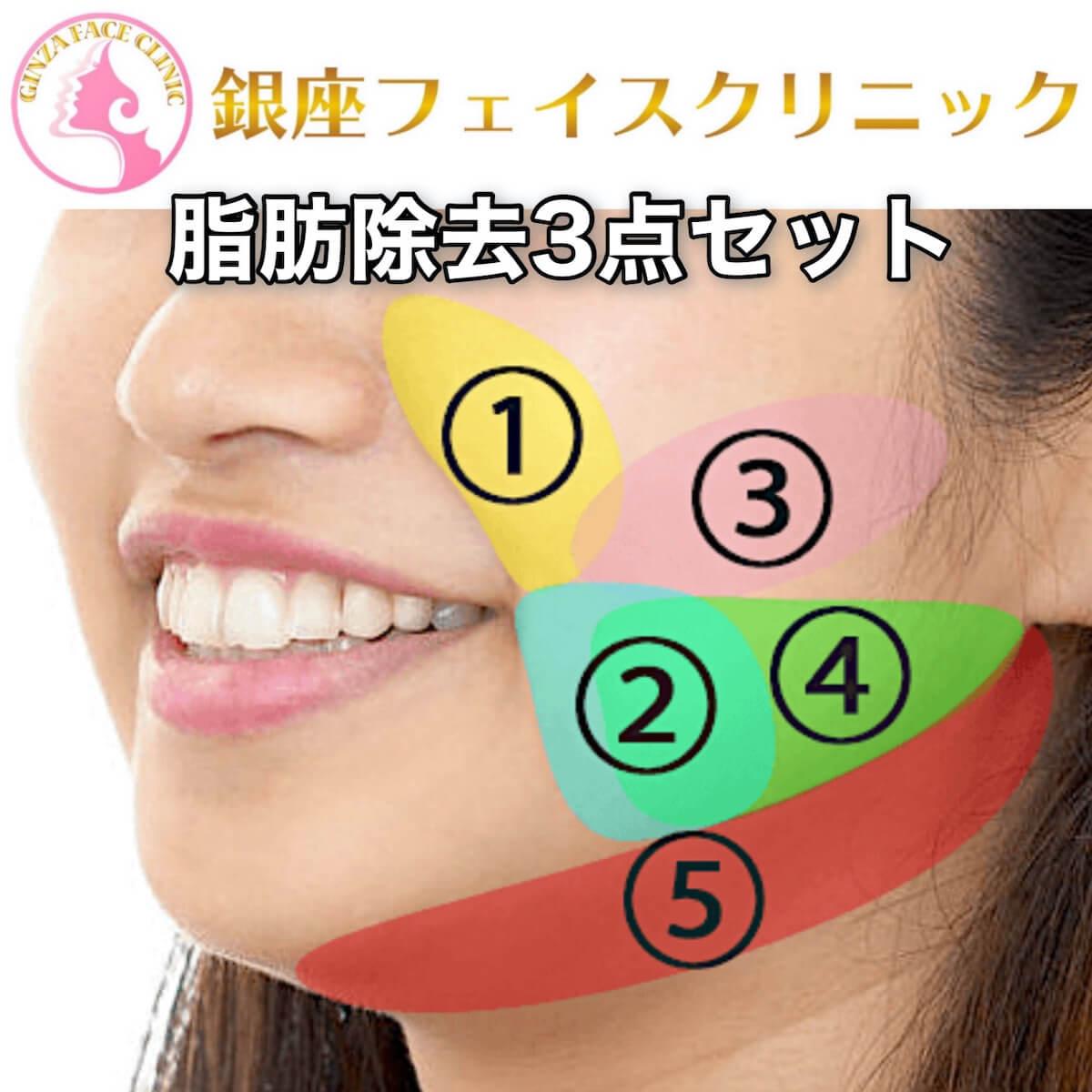 「お顔の脂肪除去3点セット」のTOP画像