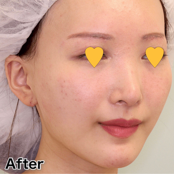 他院バッカルファット除去後の頬の凹みをヒアルロン酸で修正 症例写真(ビフォーアフター)