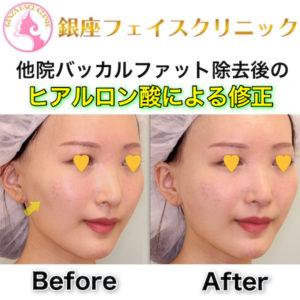 他院バッカルファット除去後の頬の凹みをヒアルロン酸で修正|症例写真(ビフォーアフター)