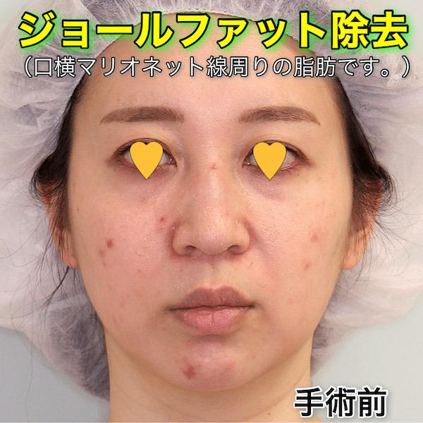 ジョールファット除去の症例写真(ビフォーアフター)