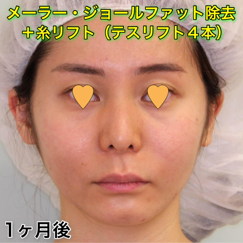メーラーファット除去・ジョールファット除去の症例写真(ビフォーアフター)