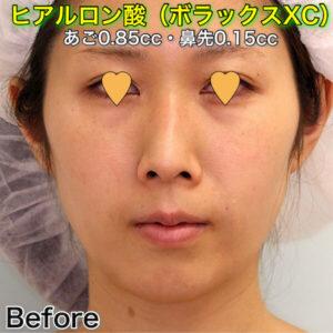 顎ヒアルロン酸_ボラックスXC_の症例写真ビフォーアフター
