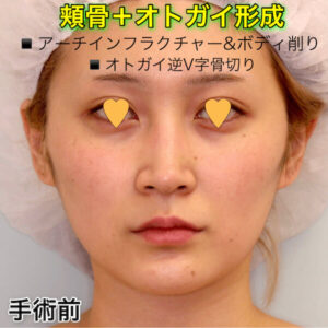 頬骨削り(アーチインフラクチャー&ボディ削り)+オトガイ形成(逆V字骨切り)の症例写真ビフォーアフター(Before After)