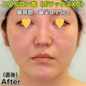 鼻ヒアルロン酸_ボラックスXC_の症例写真ビフォーアフター