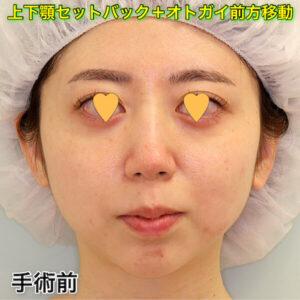上下顎セットバック+オトガイ前方移動の症例写真(ビフォーアフター)