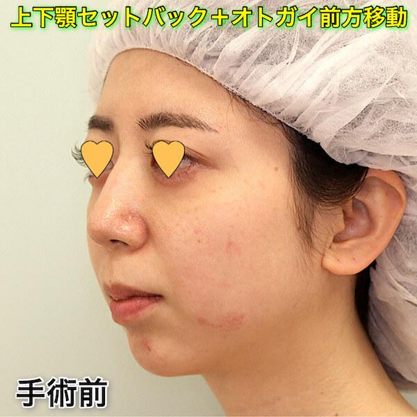 上下顎セットバック+オトガイ形成|症例写真(ビフォーアフター)