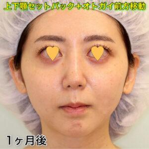 上下顎セットバック+オトガイ形成|症例写真(術後1ヶ月目)