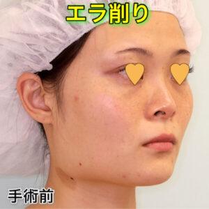 エラ削り(エラ骨切り)の症例写真ビフォーアフター