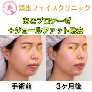 あごプロテーゼ+ジョールファット除去の症例写真(ビフォーアフター)