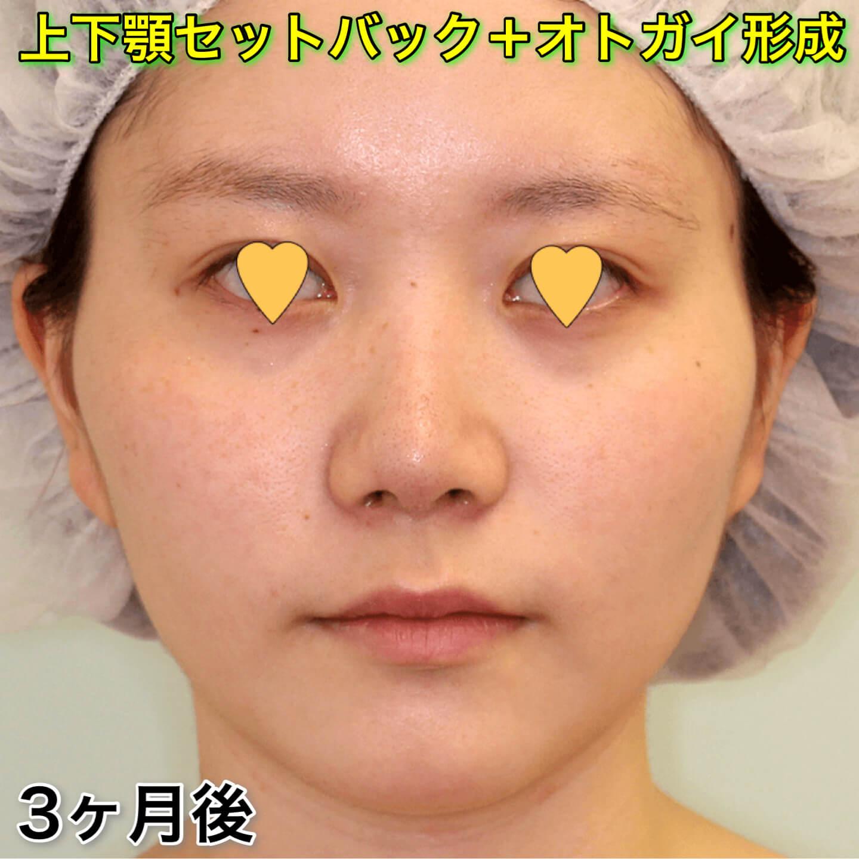 上下顎セットバック+オトガイ形成の症例写真(ビフォーアフター)