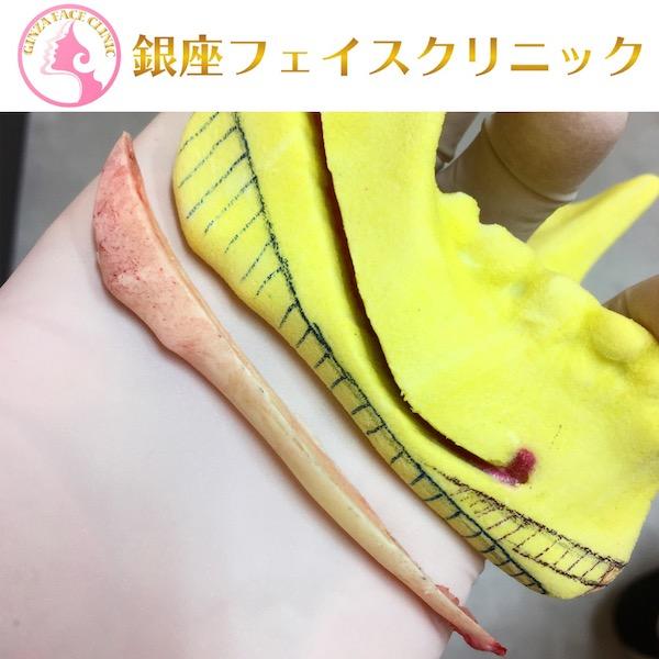 エラ削り手術の症例写真