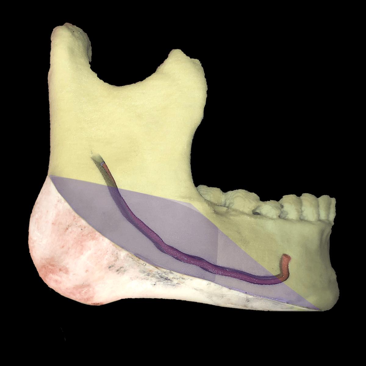 エラ削りの3D骨格模型